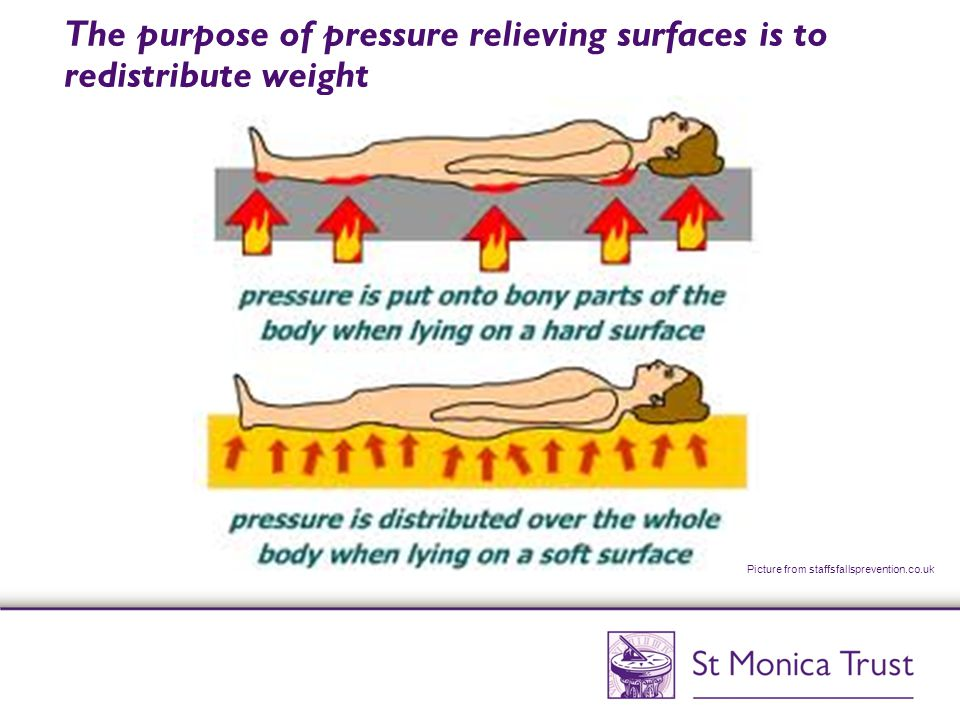 The purpose of pressure relieving surfaces is to redistribute weight Picture from staffsfallsprevention.co.uk
