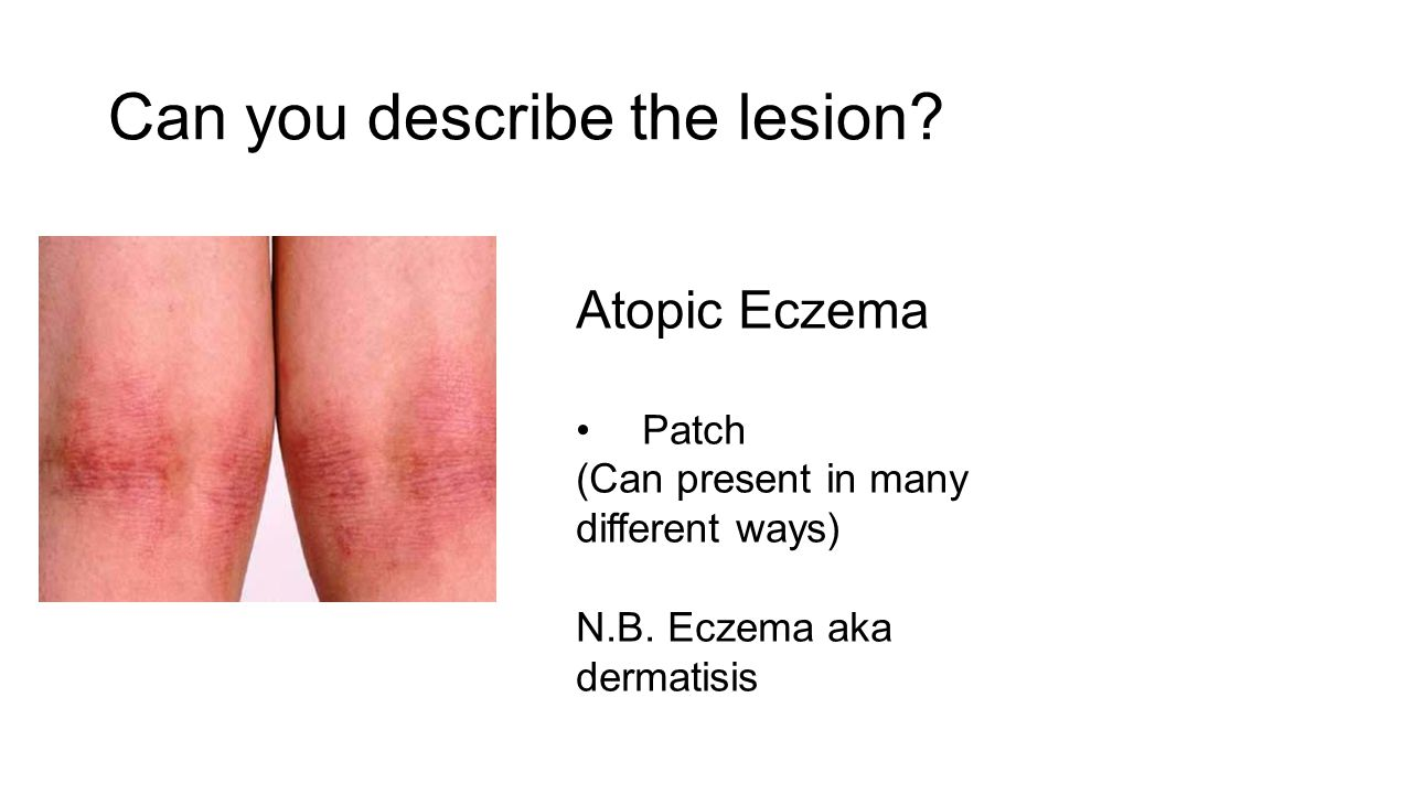 Can you describe the lesion? Atopic Eczema Patch (Can present in many different ways) N.B. Eczema aka dermatisis