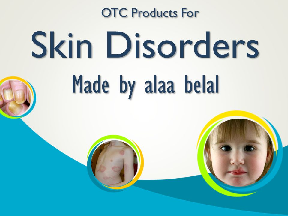 Skin Disorders Made by alaa belal OTC Products For