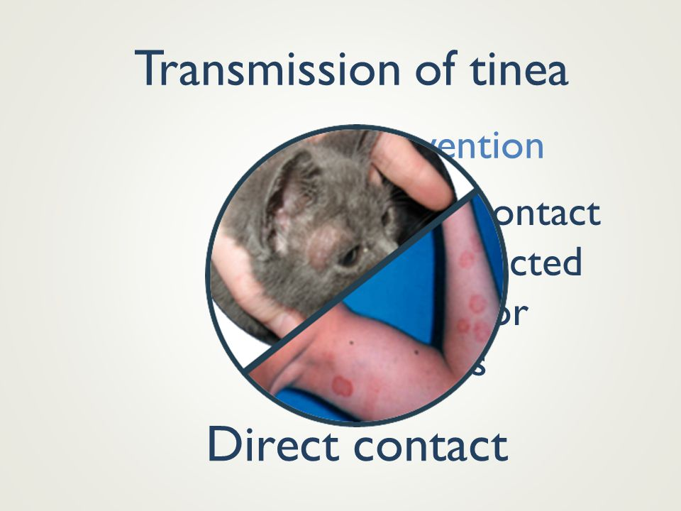 Transmission of tinea Direct contact Prevention Avoid contact with infected people or animals