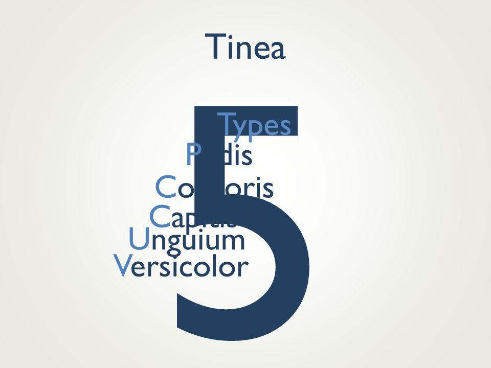 Tinea 5 Types Pedis Corporis Capitis Unguium Versicolor