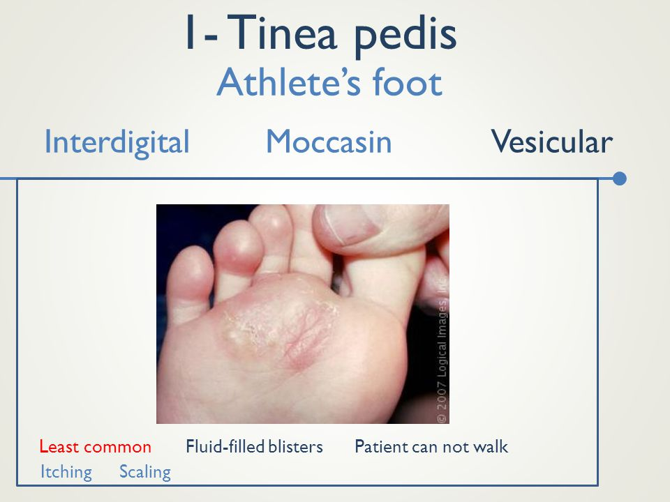 1- Tinea pedis Interdigital Athlete's foot MoccasinVesicular Least commonFluid-filled blisters Itching Scaling Patient can not walk