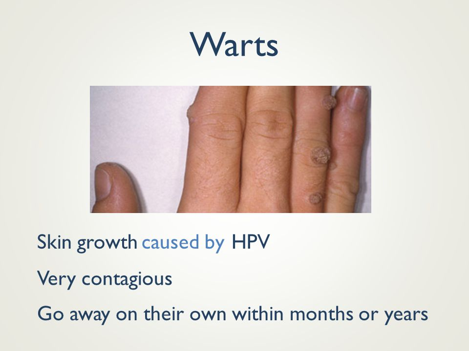 Warts Skin growthHPVcaused by Very contagious Go away on their own within months or years