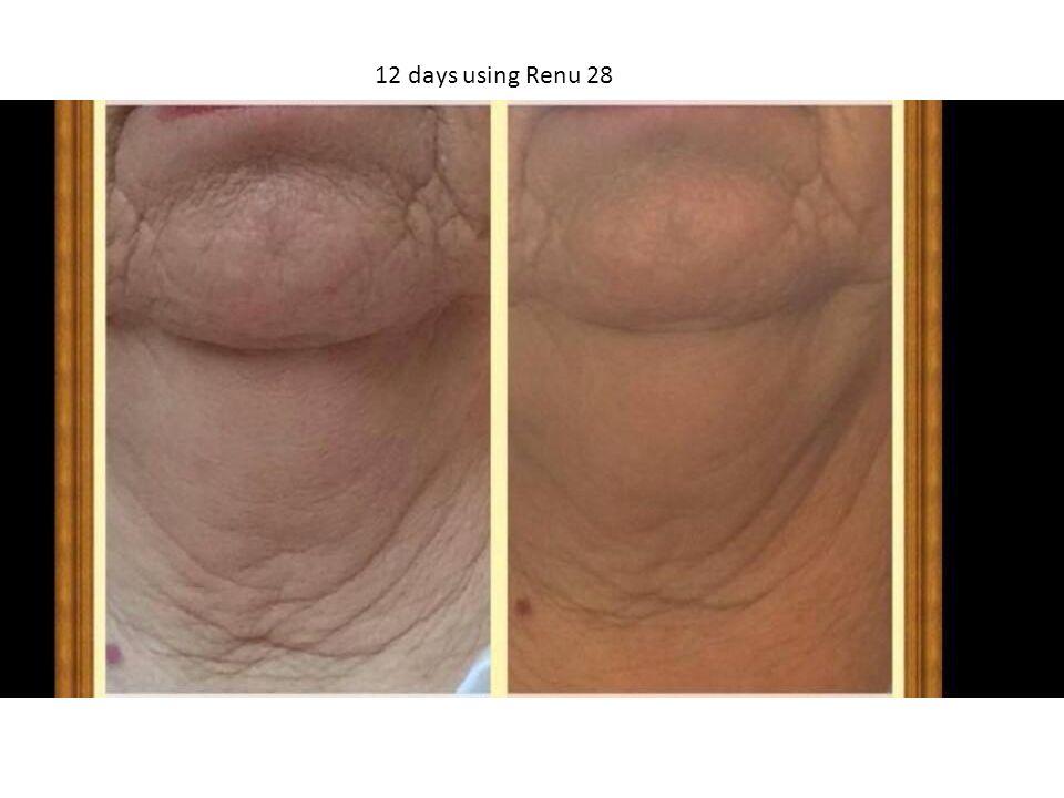 12 days using Renu 28