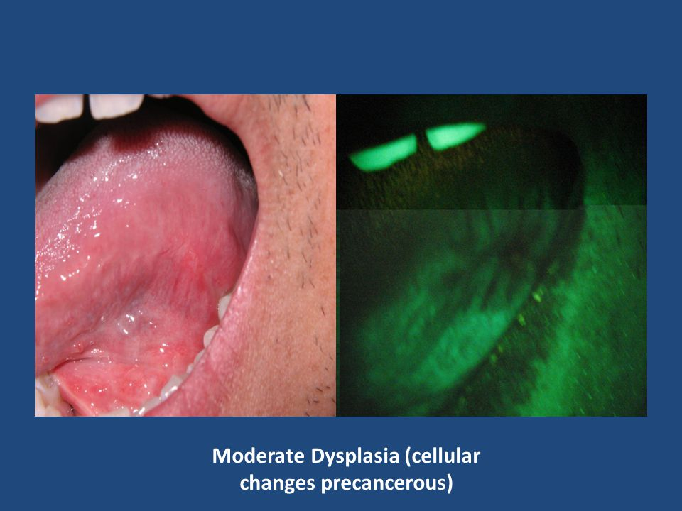 Moderate Dysplasia (cellular changes precancerous)