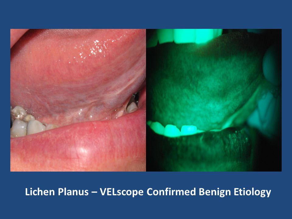 Lichen Planus – VELscope Confirmed Benign Etiology