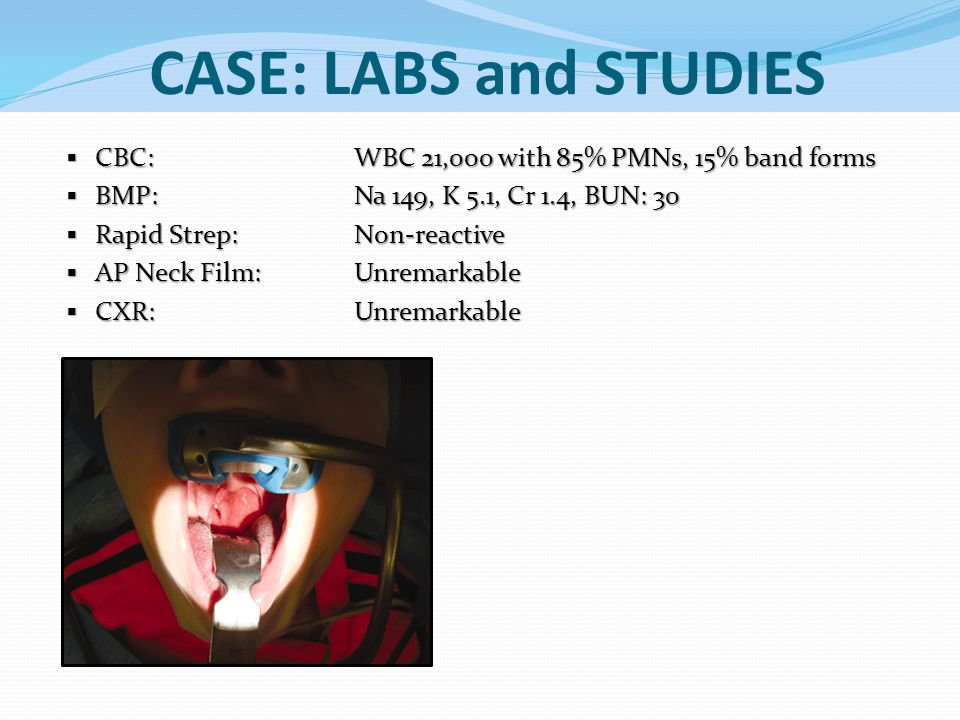 CASE: LABS and STUDIES  CBC: WBC 21,000 with 85% PMNs, 15% band forms  BMP: Na 149, K 5.1, Cr 1.4, BUN: 30  Rapid Strep: Non-reactive  AP Neck Fil