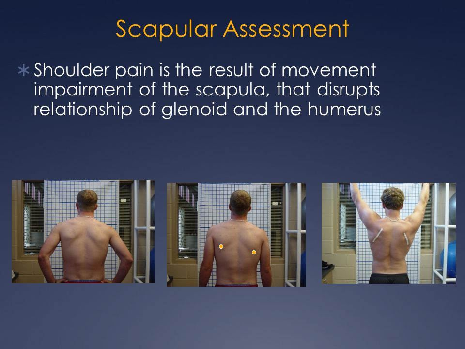 Scapular Assessment  Shoulder pain is the result of movement impairment of the scapula, that disrupts relationship of glenoid and the humerus