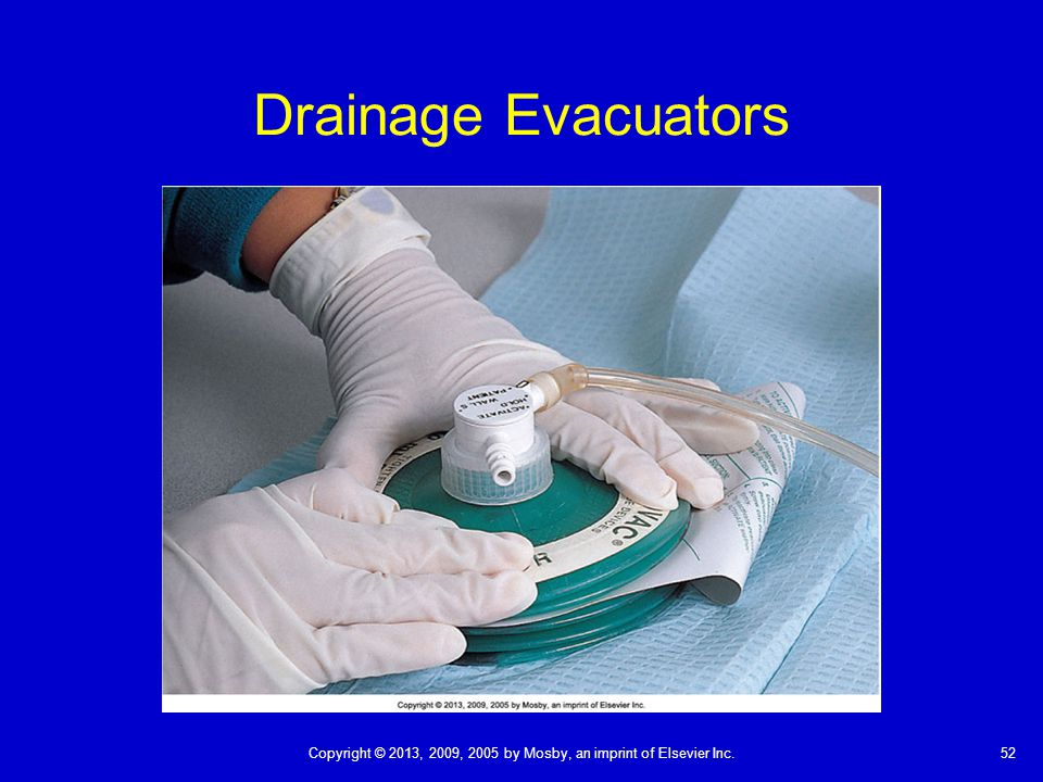 52Copyright © 2013, 2009, 2005 by Mosby, an imprint of Elsevier Inc. Drainage Evacuators