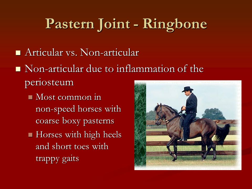 Pastern Joint - Ringbone Articular vs. Non-articular Articular vs. Non-articular Non-articular due to inflammation of the periosteum Non-articular due
