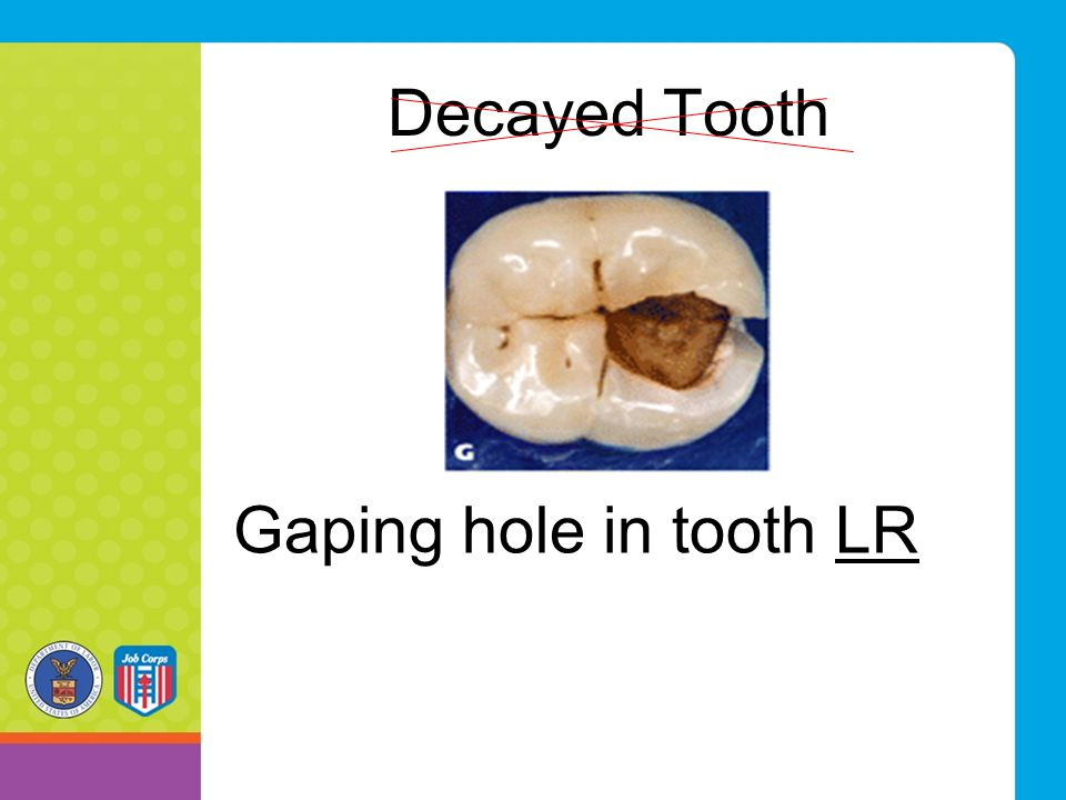 Decayed Tooth Gaping hole in tooth LR