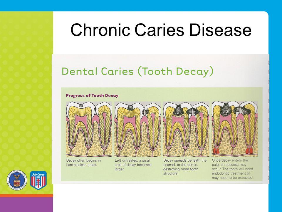 Chronic Caries Disease