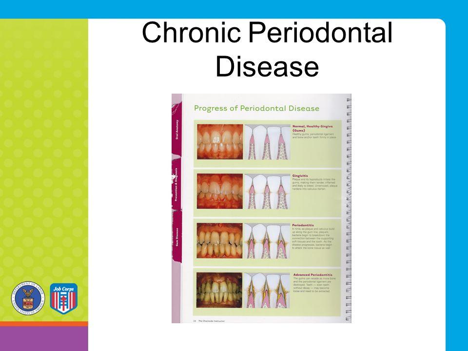 Chronic Periodontal Disease