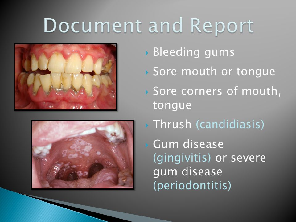  Bleeding gums  Sore mouth or tongue  Sore corners of mouth, tongue  Thrush (candidiasis)  Gum disease (gingivitis) or severe gum disease (period