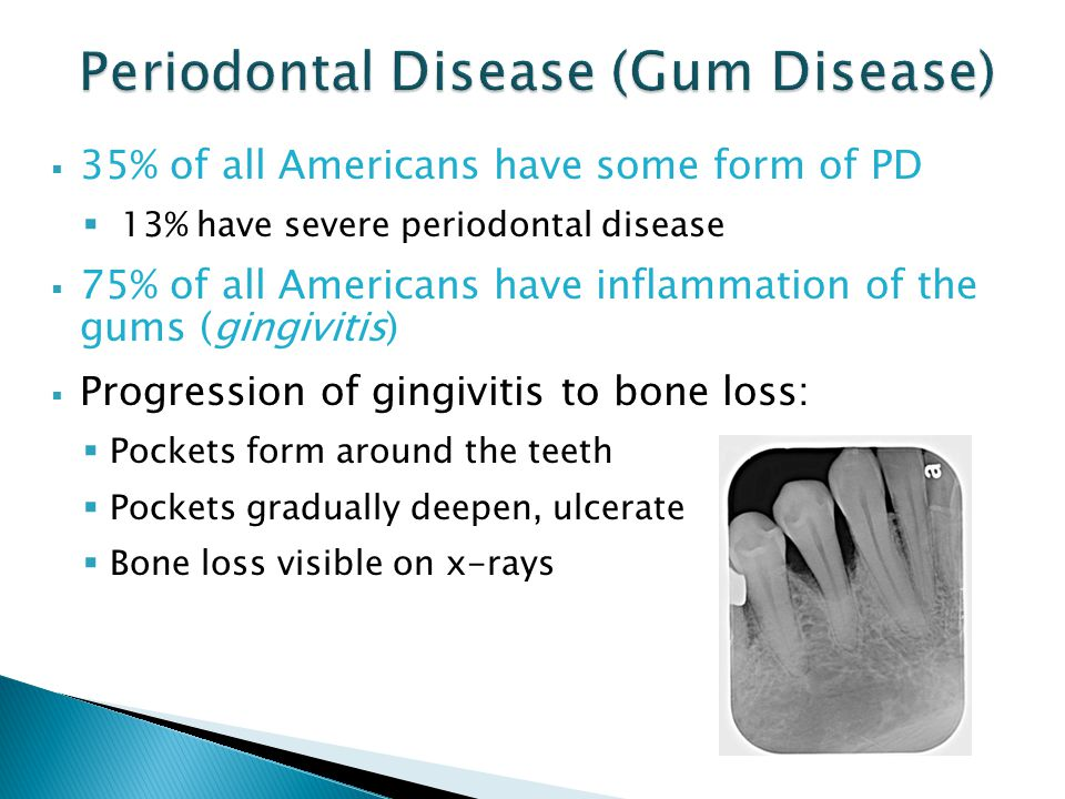  35% of all Americans have some form of PD  13% have severe periodontal disease  75% of all Americans have inflammation of the gums (gingivitis)  Progression of gingivitis to bone loss:  Pockets form around the teeth  Pockets gradually deepen, ulcerate  Bone loss visible on x-rays