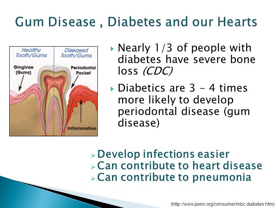 Oral Health as We Age