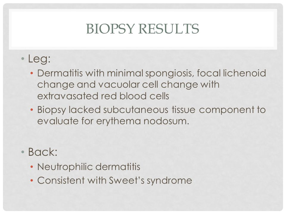 BIOPSY RESULTS Leg: Dermatitis with minimal spongiosis, focal lichenoid change and vacuolar cell change with extravasated red blood cells Biopsy lacke