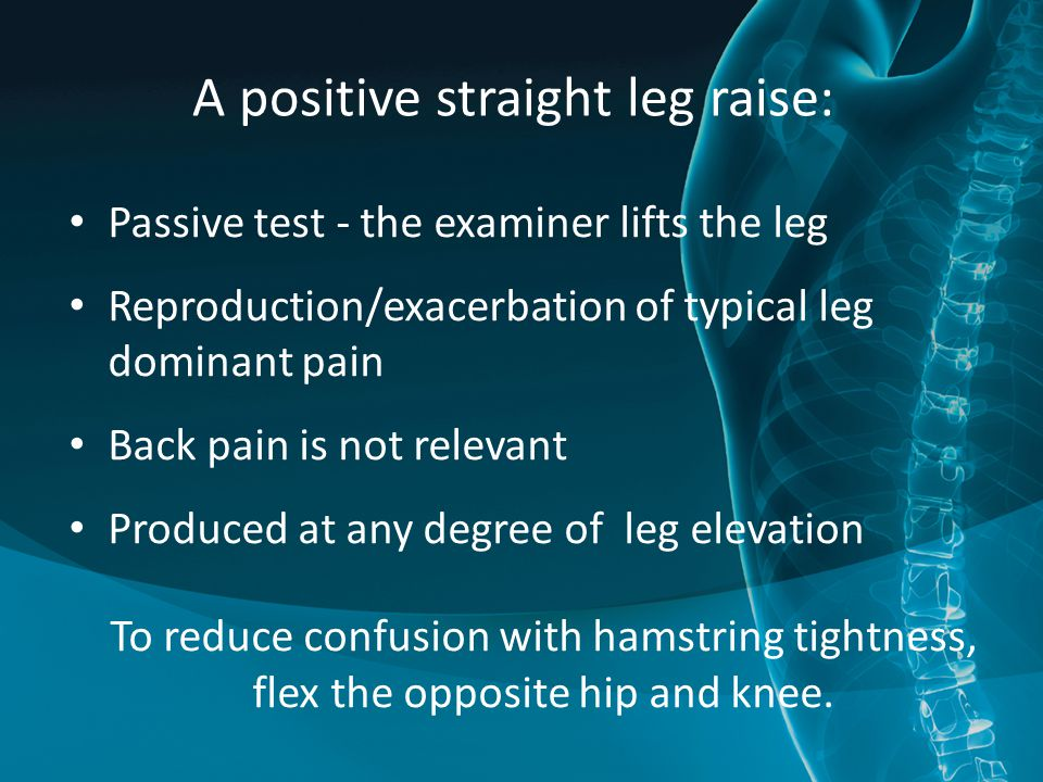A positive straight leg raise: Passive test - the examiner lifts the leg Reproduction/exacerbation of typical leg dominant pain Back pain is not relevant Produced at any degree of leg elevation To reduce confusion with hamstring tightness, flex the opposite hip and knee.