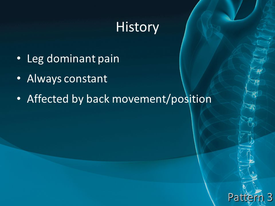 History Leg dominant pain Always constant Affected by back movement/position