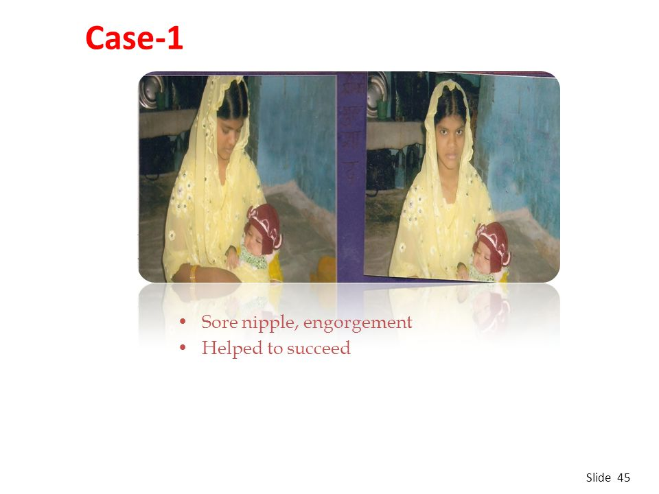 Sore nipple, engorgement Helped to succeed Case-1 Slide 45