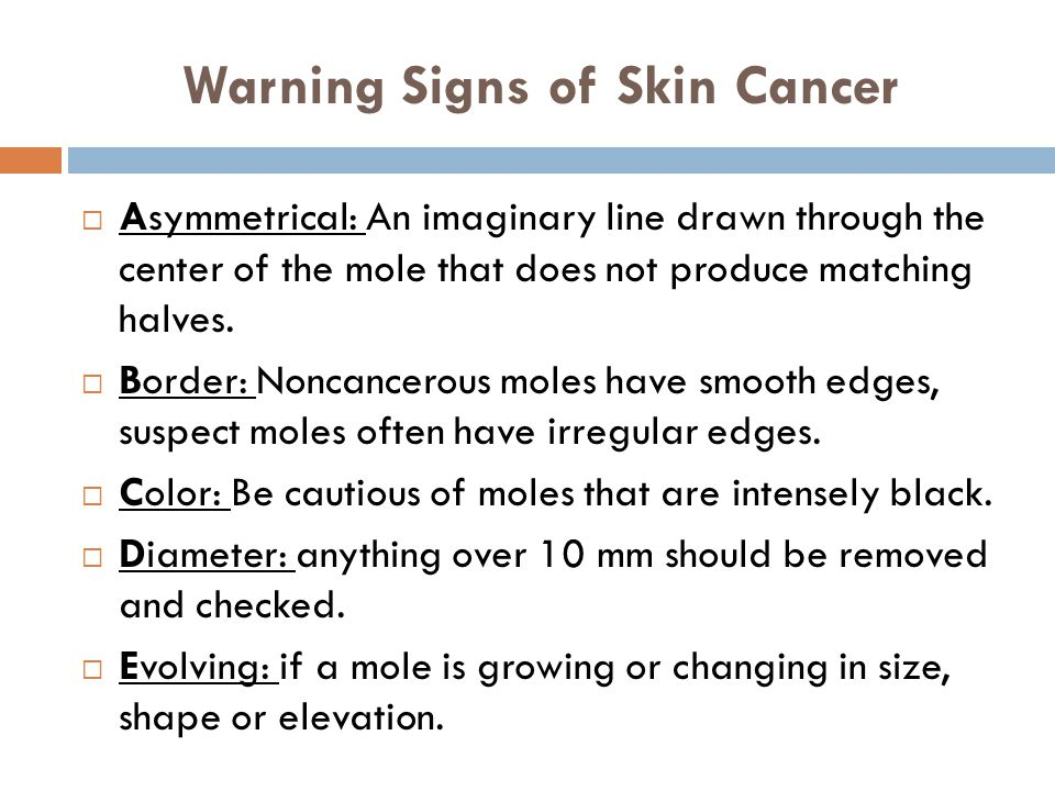 Warning Signs of Skin Cancer  Asymmetrical: An imaginary line drawn through the center of the mole that does not produce matching halves.  Border: N
