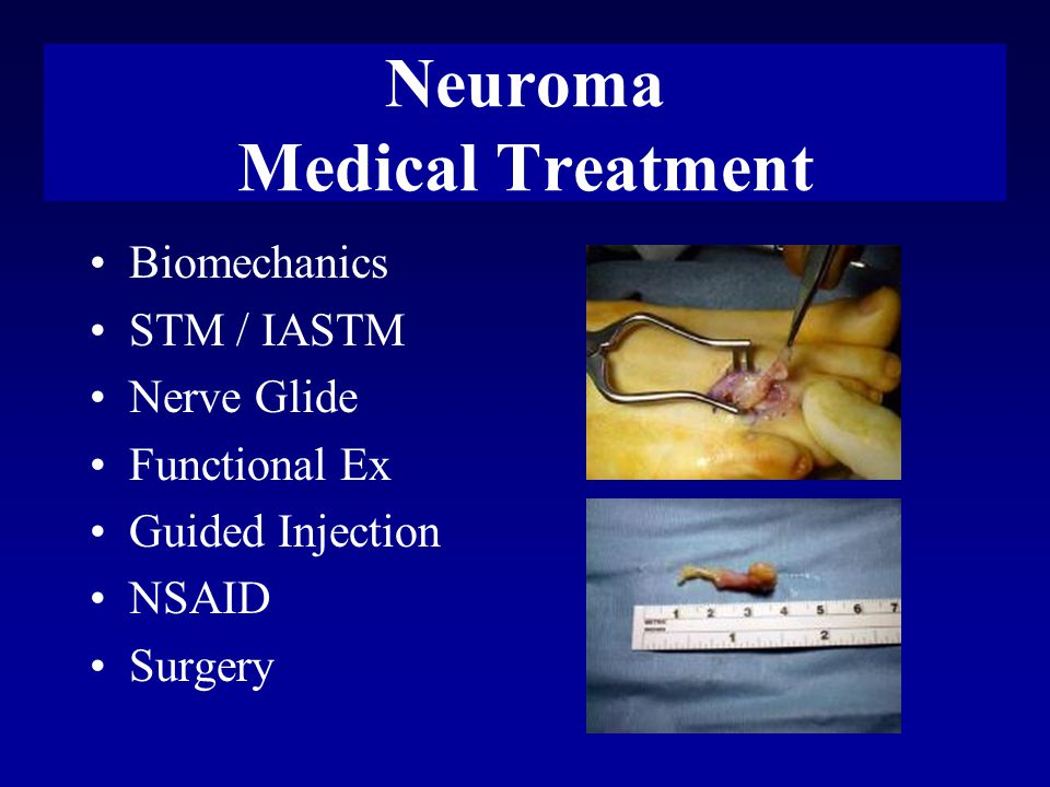 Neuroma Medical Treatment Biomechanics STM / IASTM Nerve Glide Functional Ex Guided Injection NSAID Surgery