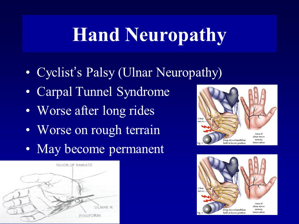 Hand Neuropathy Cyclist ' s Palsy (Ulnar Neuropathy) Carpal Tunnel Syndrome Worse after long rides Worse on rough terrain May become permanent