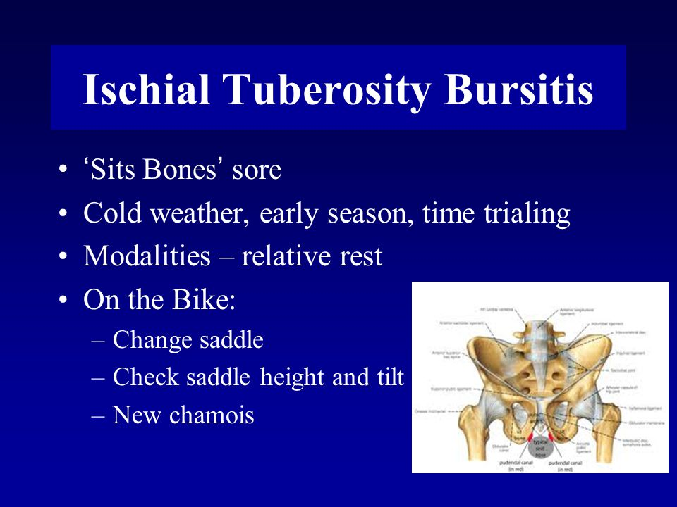 Ischial Tuberosity Bursitis ' Sits Bones ' sore Cold weather, early season, time trialing Modalities – relative rest On the Bike: –Change saddle –Check saddle height and tilt –New chamois