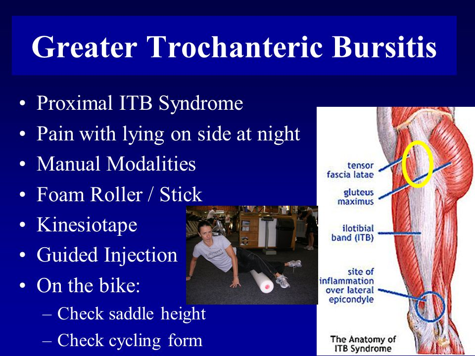 Greater Trochanteric Bursitis Proximal ITB Syndrome Pain with lying on side at night Manual Modalities Foam Roller / Stick Kinesiotape Guided Injection On the bike: –Check saddle height –Check cycling form