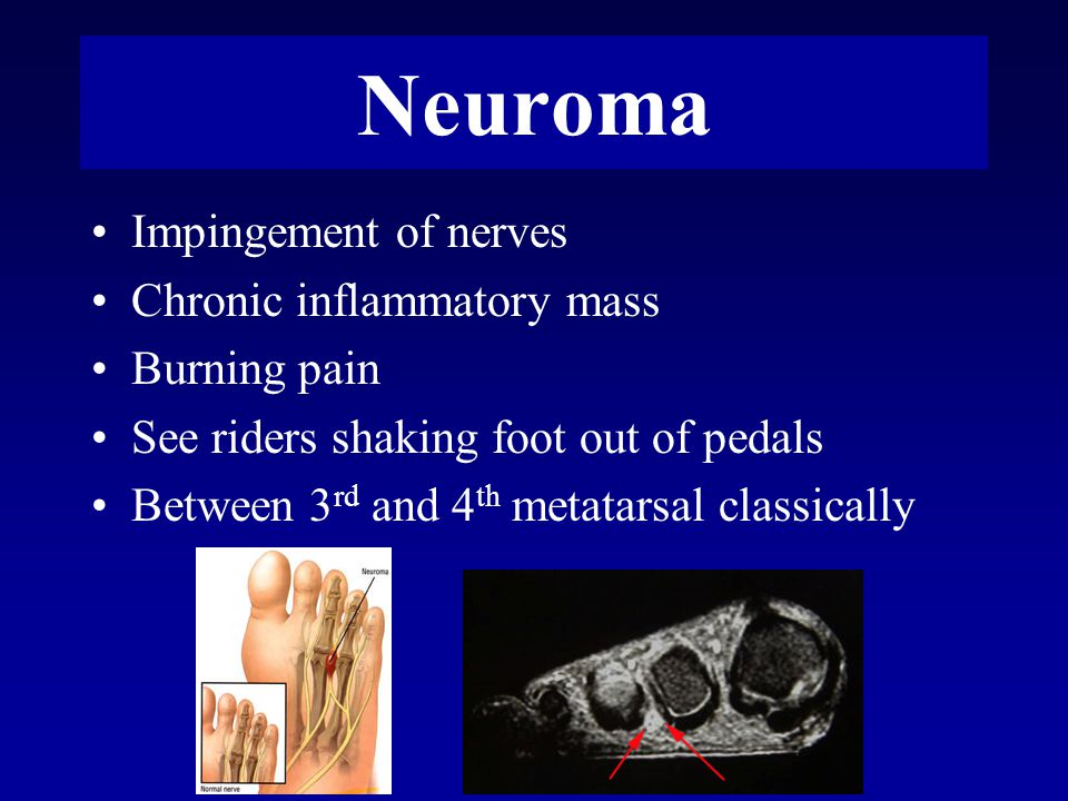 Neuroma Impingement of nerves Chronic inflammatory mass Burning pain See riders shaking foot out of pedals Between 3 rd and 4 th metatarsal classically