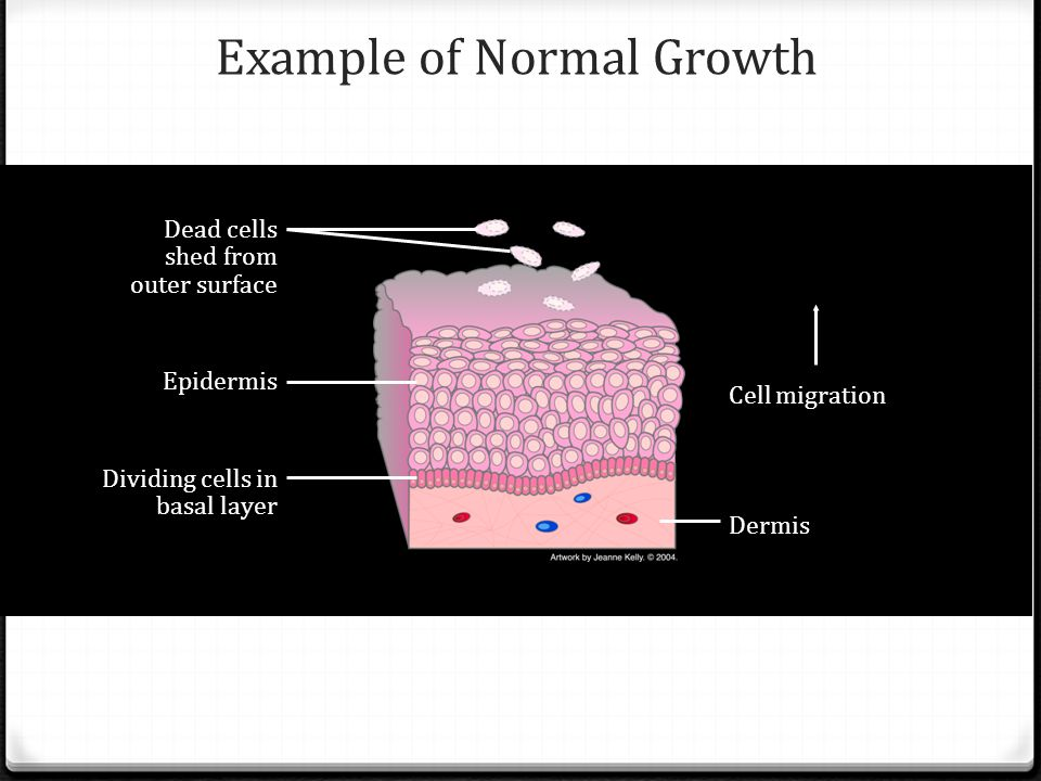 Cell migration Dermis Dividing cells in basal layer Dead cells shed from outer surface Epidermis Example of Normal Growth