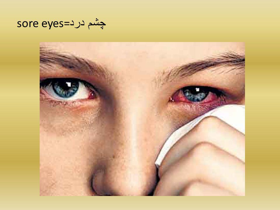 sore eyes= چشم درد