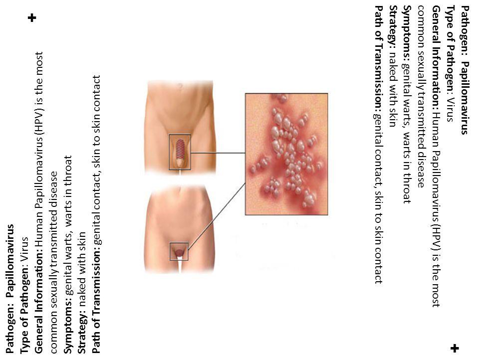 ✚ ✚ Pathogen: Papillomavirus Type of Pathogen: Virus General Information: Human Papillomavirus (HPV) is the most common sexually transmitted disease S