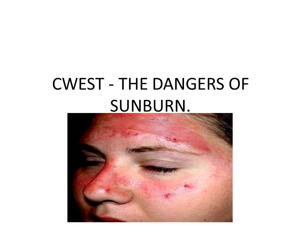 CWEST - THE DANGERS OF SUNBURN.