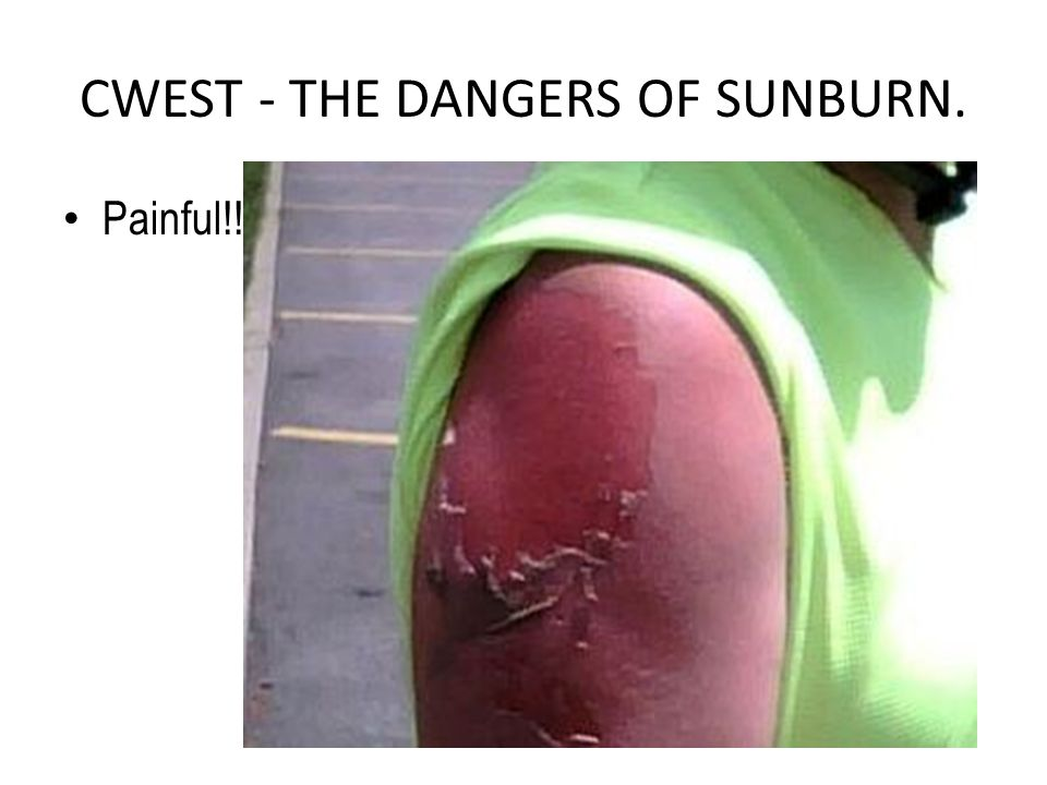 CWEST - THE DANGERS OF SUNBURN. Painful!!