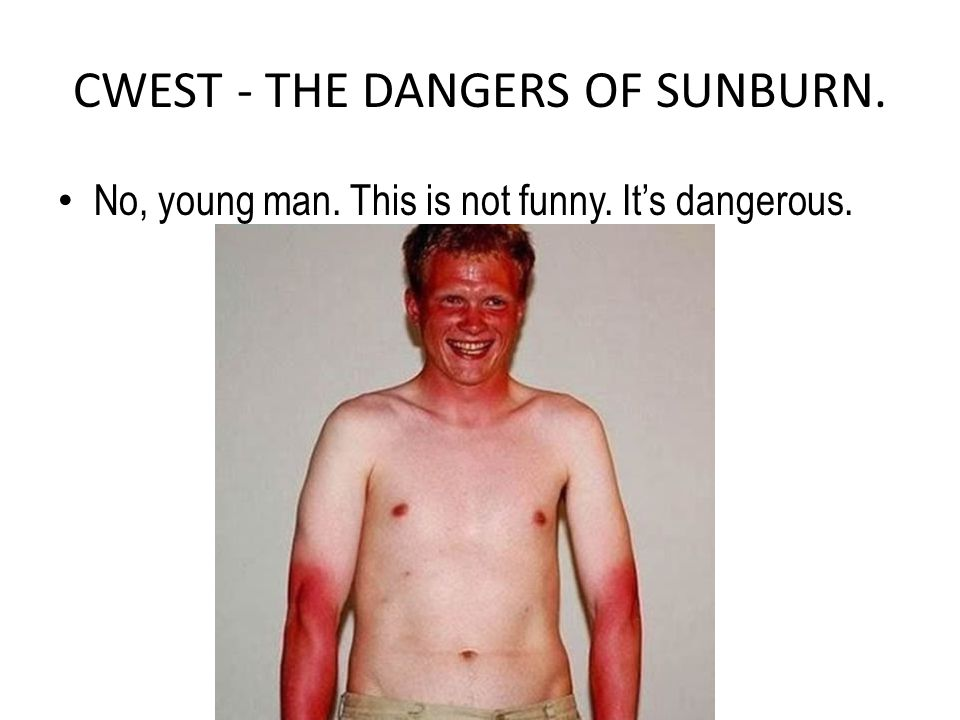 CWEST - THE DANGERS OF SUNBURN. No, young man. This is not funny. It's dangerous.