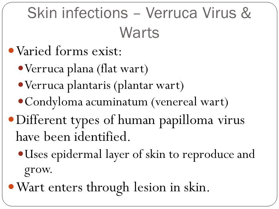 Skin infections – Verruca Virus & Warts Varied forms exist: Verruca plana (flat wart) Verruca plantaris (plantar wart) Condyloma acuminatum (venereal