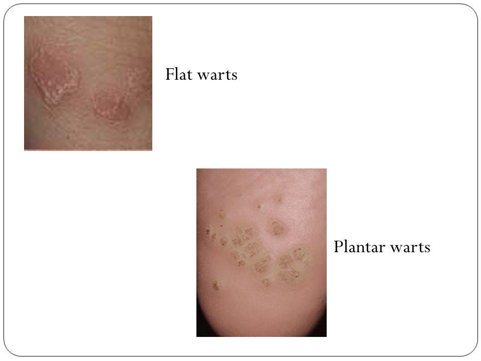 Flat warts Plantar warts