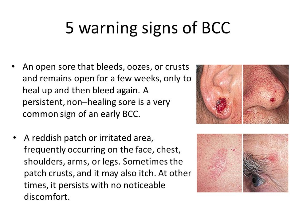 5 warning signs of BCC An open sore that bleeds, oozes, or crusts and remains open for a few weeks, only to heal up and then bleed again.