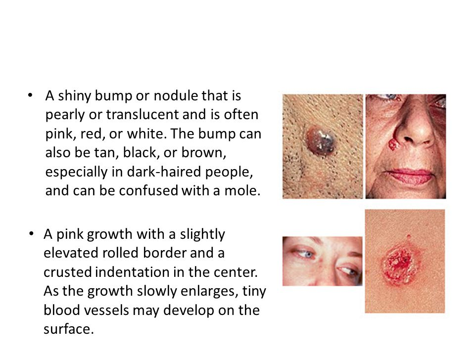 A shiny bump or nodule that is pearly or translucent and is often pink, red, or white.