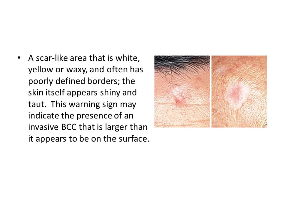 A scar-like area that is white, yellow or waxy, and often has poorly defined borders; the skin itself appears shiny and taut.