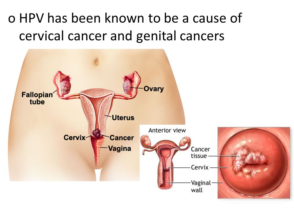 oHPV has been known to be a cause of cervical cancer and genital cancers