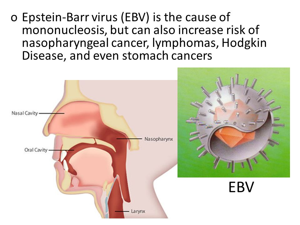 oEpstein-Barr virus (EBV) is the cause of mononucleosis, but can also increase risk of nasopharyngeal cancer, lymphomas, Hodgkin Disease, and even stomach cancers EBV