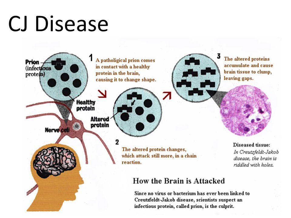 CJ Disease