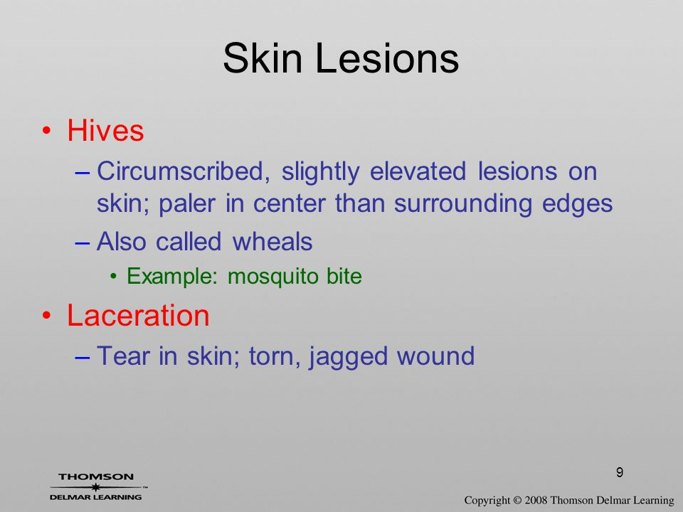10 Skin Lesions Macule –Small flat, discoloration of the skin; neither raised nor depressed Example: bruises, freckles Nodule –Small, circumscribed swelling protruding above the skin