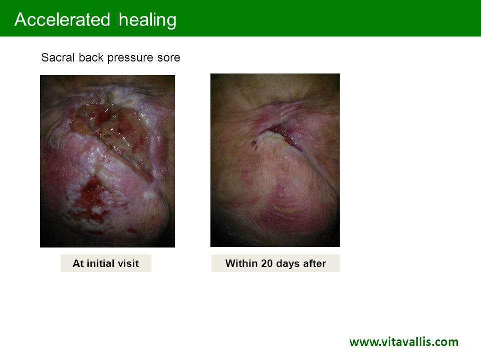Accelerated healing At initial visitWithin 20 days after Sacral back pressure sore www.vitavallis.com