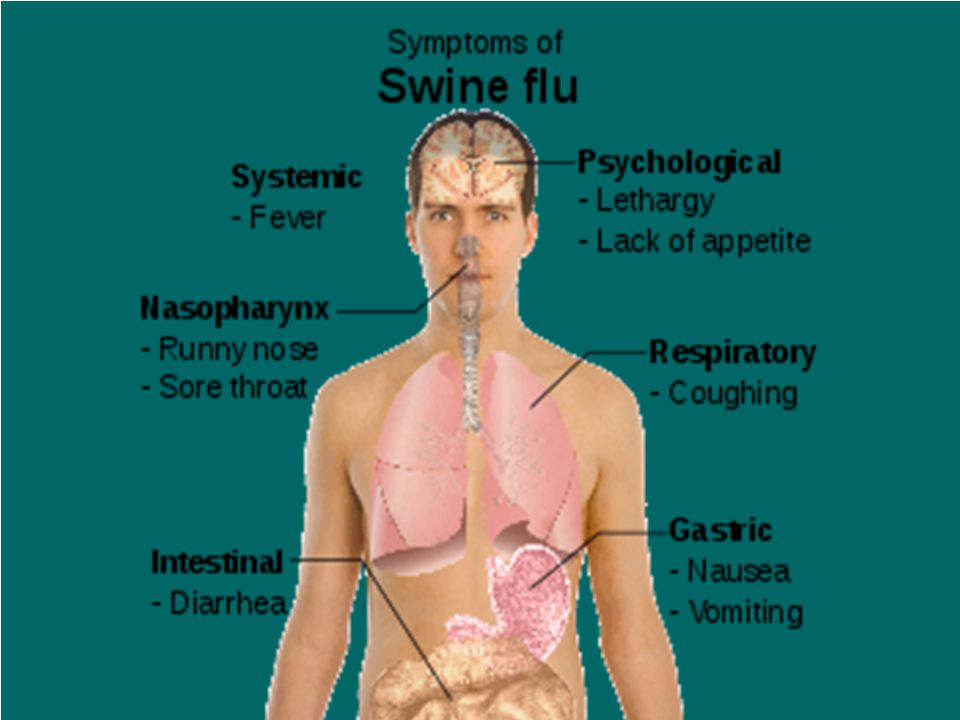 FREQUENTLY ASKED QUESTIONS  What is swine flu.