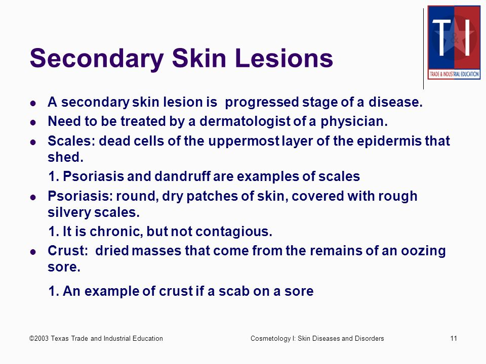 ©2003 Texas Trade and Industrial EducationCosmetology I: Skin Diseases and Disorders10 Primary Skin Lesions Wheals: solid formation above the skin, sometimes caused by an insect bite or allergic reaction.