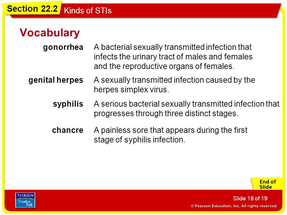 Section 22.2 Kinds of STIs Slide 18 of 19 Vocabulary gonorrhea A bacterial sexually transmitted infection that infects the urinary tract of males and