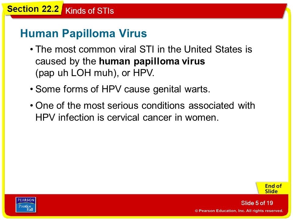 Section 22.2 Kinds of STIs Slide 6 of 19 The most common STI caused by bacteria in the United States is chlamydia (kluh MID ee uh).
